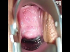 Camilla gyno chair pussy speculum exam at kinky gyno clinic  free