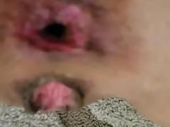 Fleshly fucked pussy and asshole